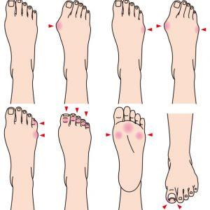 足が悲鳴をあげている!外反母趾にみられる11の特徴