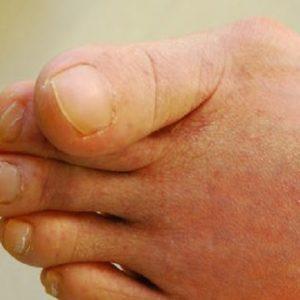 知っておいて欲しい!5種類の外反母趾