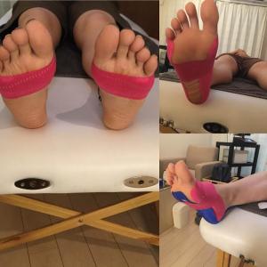 外反母趾に効果のある簡単なテーピングの巻き方