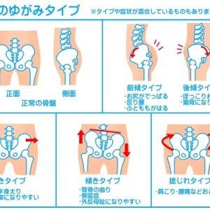 外反母趾に骨盤矯正をする理由。~歪みを知ると見えてくる~