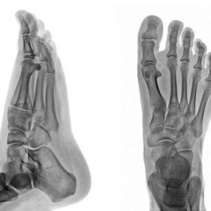外反母趾には整体をお勧めする5つの理由。