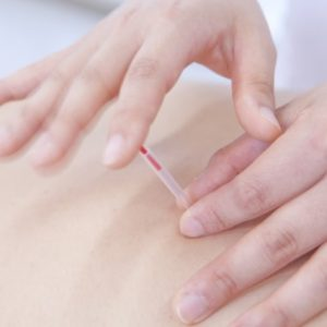 まさに一瞬!!鍼で腰痛の施術をするメリット。