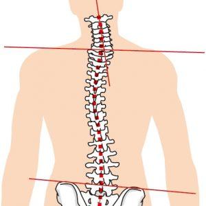 側弯症を患っている腰痛の症例