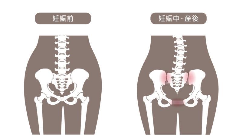 産後の骨盤のゆがみ